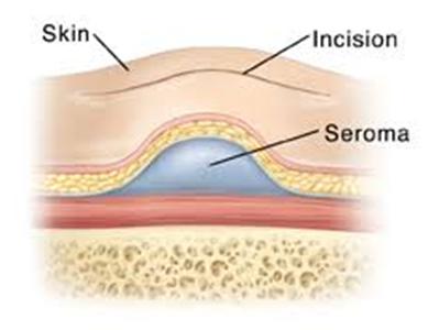 Treating a Post-Surgical Seroma or Hematoma